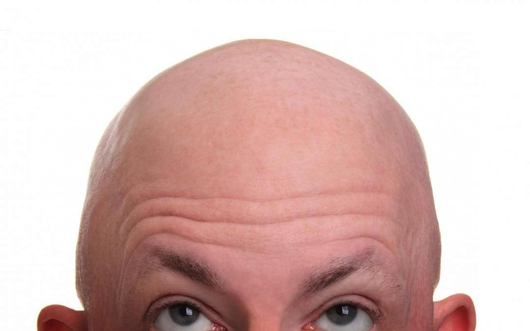 varför tappar man hår